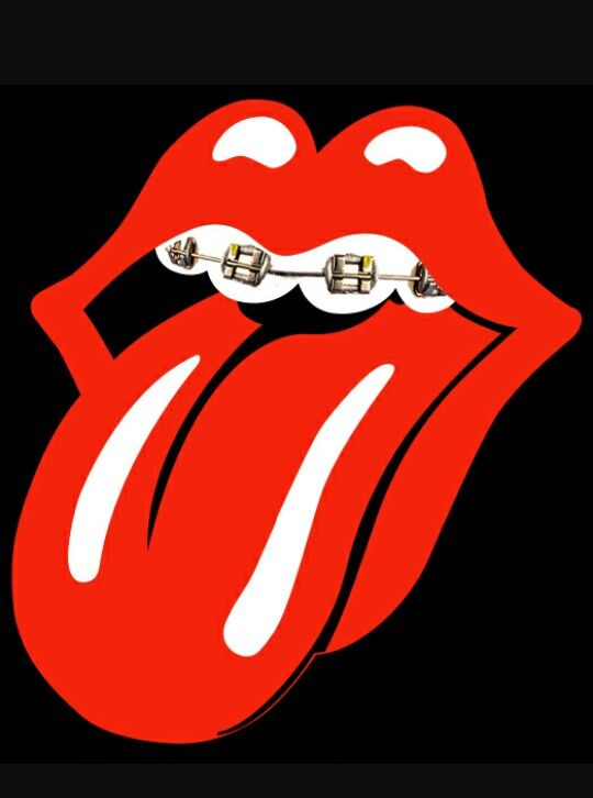 Rolling Stones logo with braces. #dentistry