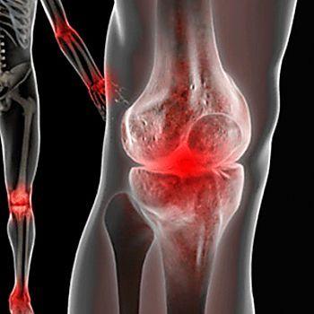 Un metodo semplice per liberarsi del dolore articolare