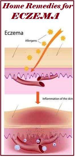 Eczema Home Remedies for Eczema...