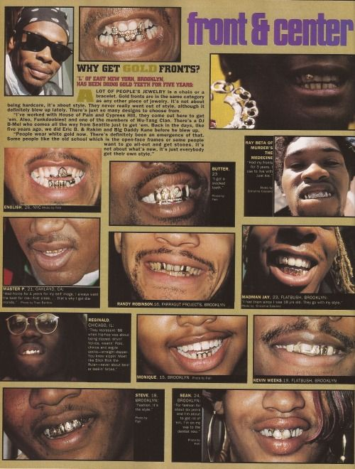 Djlohead Gold Fronts Gold Teeth Chains Jewelry