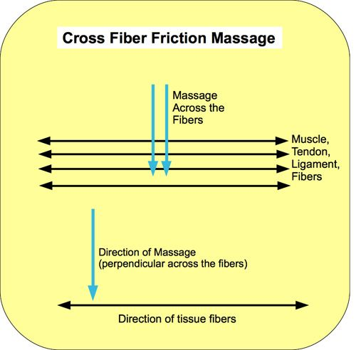The goal of cross-fiber friction massage is to maintain mobility, range of motion and reduce scarring within the soft tissue structures of ligament, tendon, and muscle after an injury. This technique also reduces the crystalline roughness that forms between tendons and their sheaths that can result in painful tendonitis. It can also prevent or soften myofascial adhesions and trigger points that restrict or impair movement…