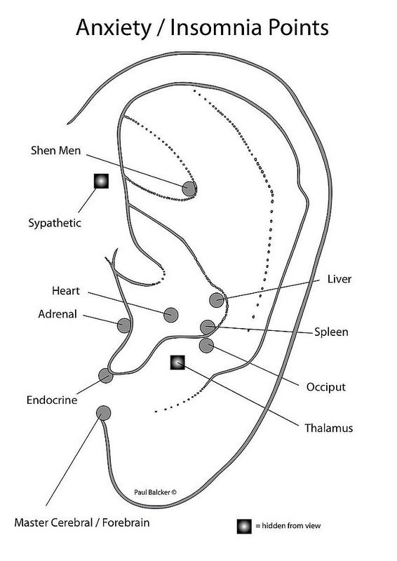 Anxiety/insomnia auricular acupuncture protocol per CPD Group/Paul Blacker.