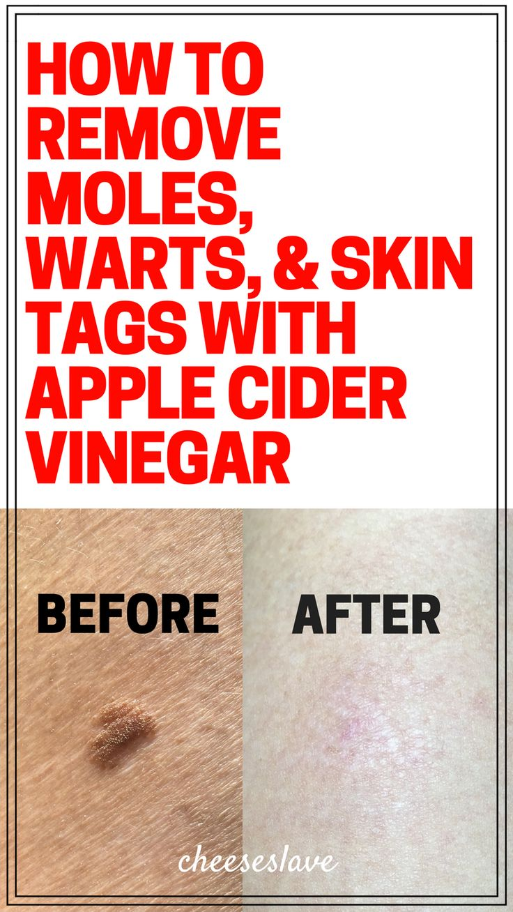 How to Remove Moles Warts and Skin Tags with Apple Cider Vinegar