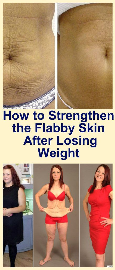 How to Strengthen Flabby Skin After Losing Weight