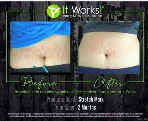 1,2,3,4.....I declare a stretch mark war!!!   I am looking for 10 people (men or women) that have stretch marks and want them GONE!   If this is you message me to become a product tester and get the AMAZING Stretch Mark Cream for 3 months & receive my wholesale price of $39/month! ($65 retail)  Order online at www.jessicapagliaro.myitworks.com