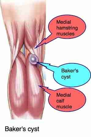 Bakers cyst knee can cause very sharp pain behind the leg.