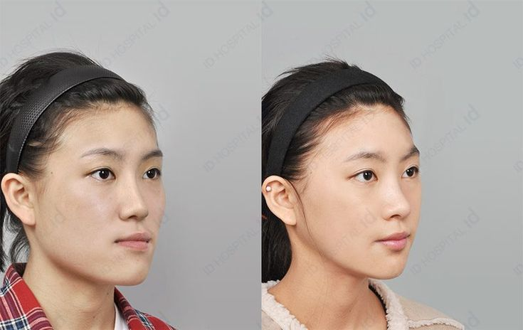 Orthognathic surgery in korea the only way to fix