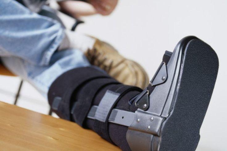 Si te lesionas el metatarso: ¿cuánto tiempo debes evitar los deportes? | Muy Fitness