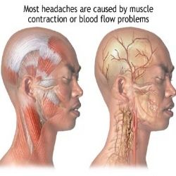 Home Remedies For Headaches - Natural Treatments & Cure For Headaches | Health Care A to Z