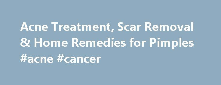 Acne Treatment, Scar Removal & Home Remedies for Pimples #acne #cancer http://diet.nef2.com/acne-treatment-scar-removal-home-remedies-for-pimples-acne-cancer/  # Acne (Pimples) Quick Guide Slideshow: Acne Visual Dictionary What is acne? Acne (acne vulgari