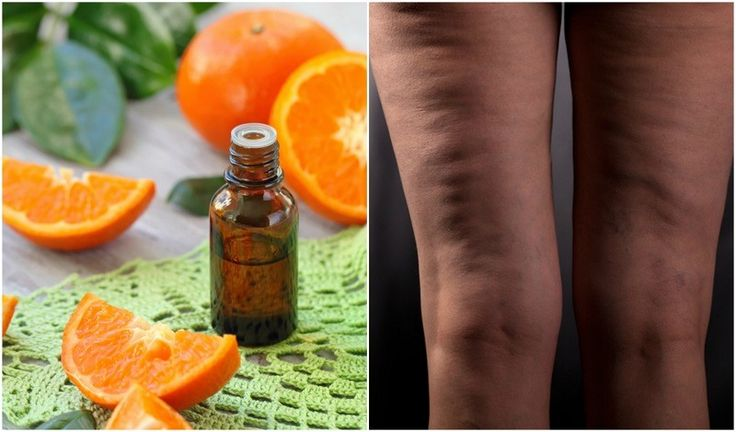 ? How To Use Essential Oils For Cellulite The best way to use the below essential oils to get rid of cellulite is to dilute a few drops in a carrier oil of your choice and massage into the skin in circular motions using your hand, or… [read more]