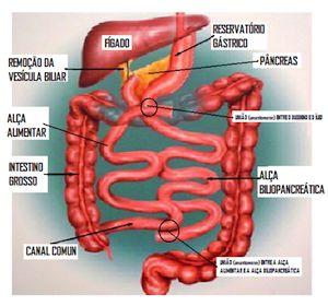 Os benefícios da Mini cirurgia de bypass gástrico na perda de peso | Perda de Peso