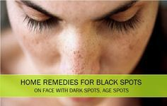 Home remedies for black spots, dark spots, age spots, pimple marks