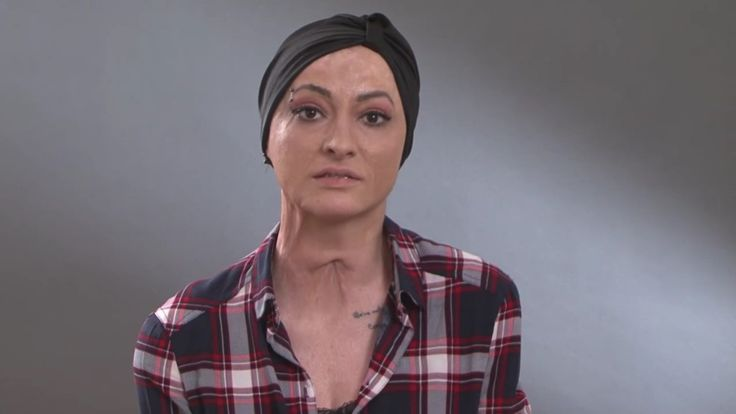 """VIDEO Mesajul supravieţuitorilor din Colectiv pentru români: """"Avem o rugăminte!"""""""