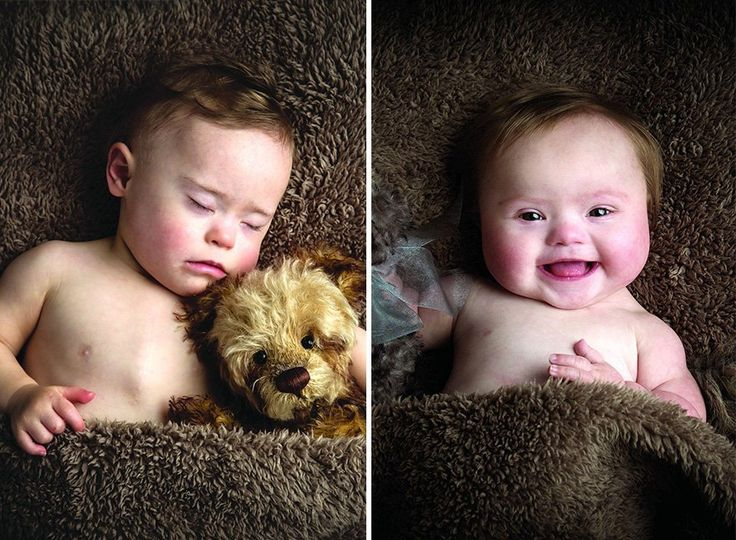 Bebês com síndrome de Down posam para calendário beneficente