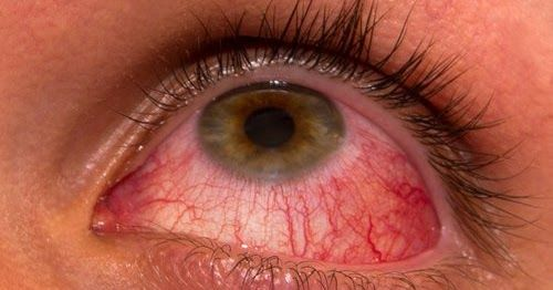 Conjunctivitis, also known as pink eye, is inflammation of the outermost layer of the white part of the eye and the inner surface http://cancerhomoeoclinics.blogspot.in/2016/11/conjunctivitis-treatment-in-homeopathy.html #Conjunctivitiestreatment #Conjunctivitiestreatmentclinic #Conjunctivitieshomepathy #Homeopathyclinic