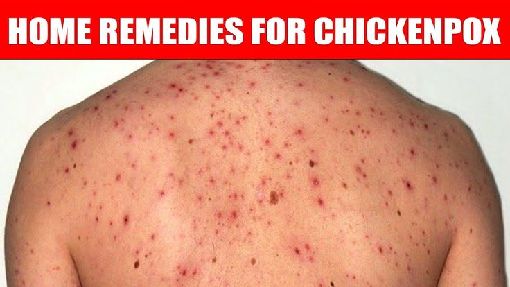 Home Remedies For Chickenpox | Natural Cures | Health tips