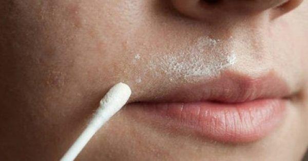 Υγεία - Σχεδόν κάθε γυναίκα αντιμετωπίζει προβλήματα με την ανεπιθύμητη τριχοφυΐα στο πρόσωπο, ειδικά με τις τρίχες πάνω από το άνω χείλος. Οι περισσότερες γυναίκε