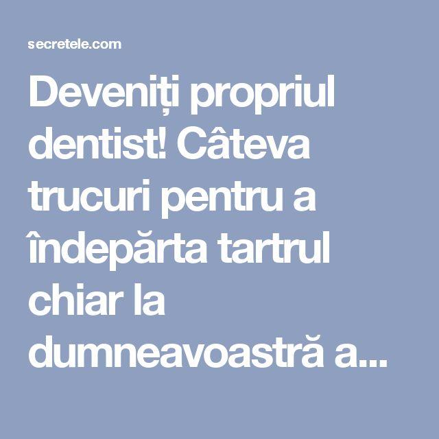 Deveniți propriul dentist! Câteva trucuri pentru a îndepărta tartrul chiar la dumneavoastră acasă! - Secretele.com