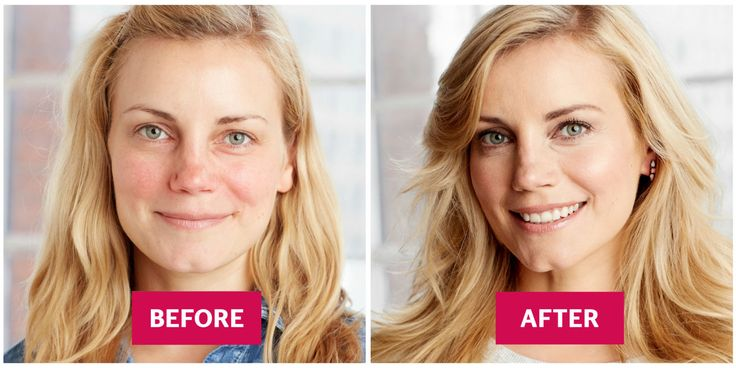 """A rosy flush is pretty. Splotchy red, not so much. """"The key is to cover it without caking on makeup,"""" says Mally Roncal. Do it this way."""