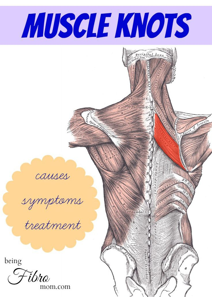 muscle knots - causes, symptoms, and treatments  http://www.beingfibromom.com/muscle-knots/  #muscleknots #fibromyalgia #chronicpain