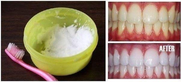 1000 id es sur le th me blanchiment des dents naturel sur pinterest dents blanches sourire. Black Bedroom Furniture Sets. Home Design Ideas