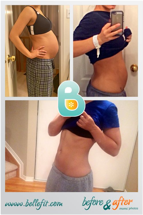 """""""I started wearing my belt on the day of delivery, which immediately improved my …   – Post Pregnancy & Postpartum Recovery"""