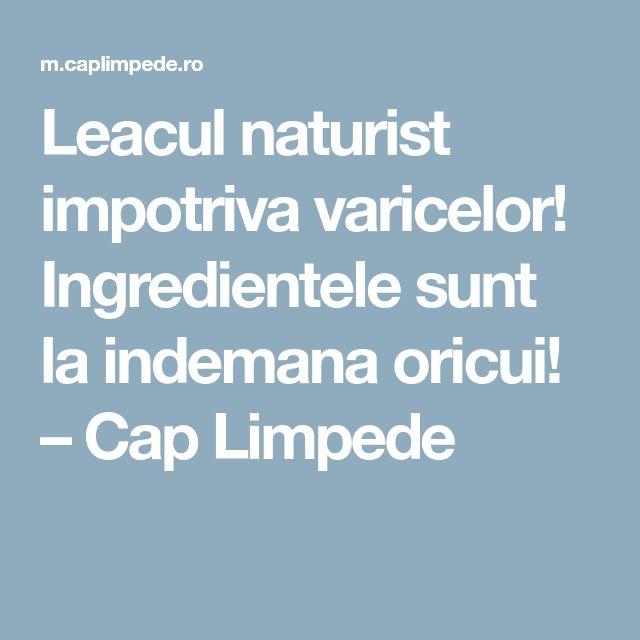 Leacul naturist impotriva varicelor! Ingredientele sunt la indemana oricui! – Cap Limpede