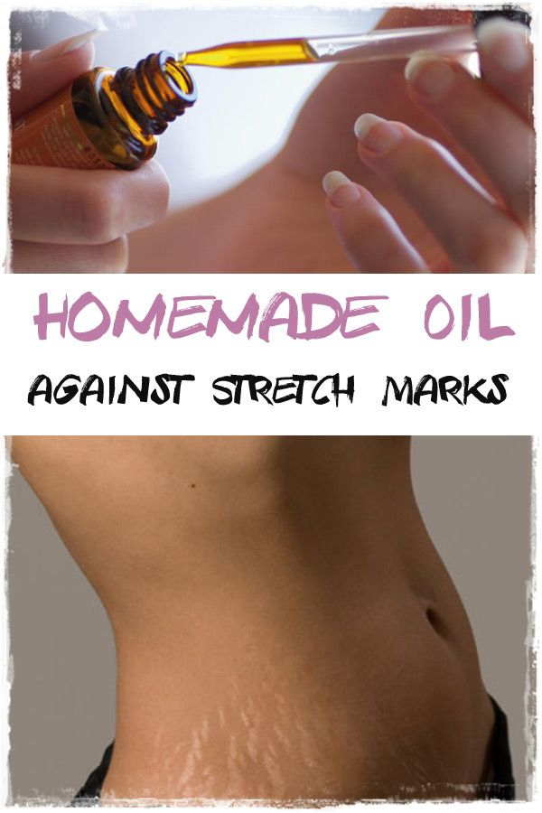 This homemade oil is wonderful when it comes to reducing stretch marks. It is based on numerous seeds and essential oils, all with extraordinary properties.