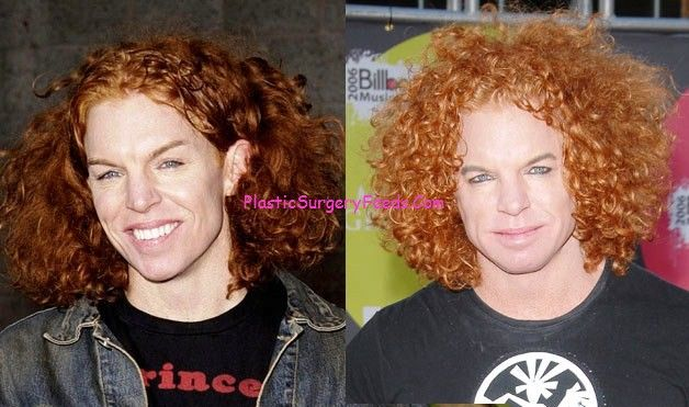 Carrot Top Before After Plastic Surgery Gone Wrong Pic