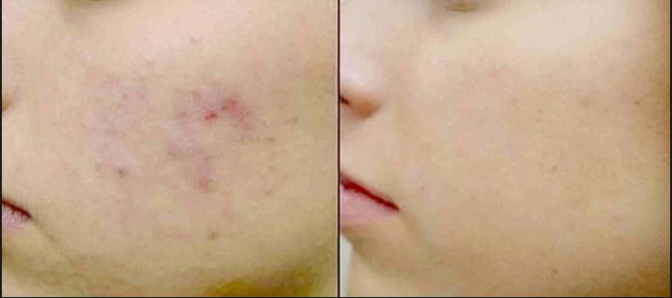 Cara cepat Menghilangkan Bekas Jerawat Dengan Cepat Menggunakan Cream Aeuko Acelora