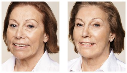 Restylane for wrinkles, folds and lips