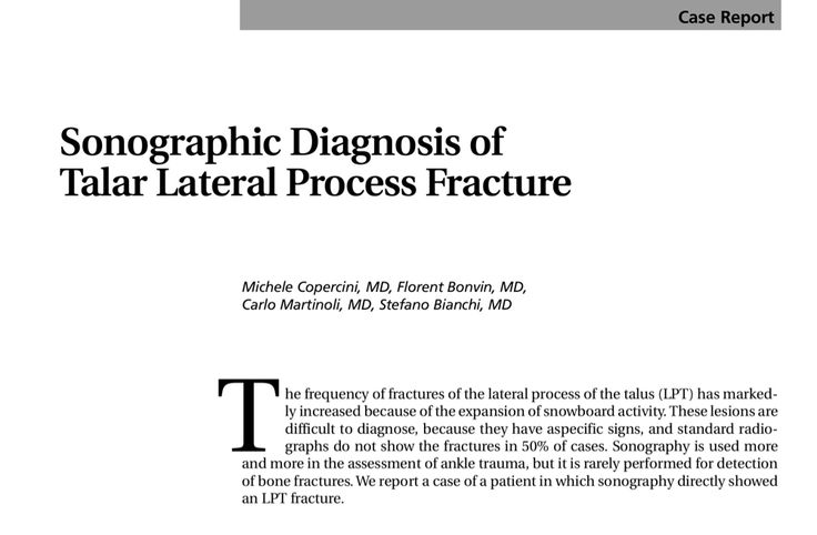 51 best diagnostic msk ultrasound images on pinterest ultrasound interesting case study in the journal of ultrasound in medicine on lateral talus fracture http fandeluxe Choice Image