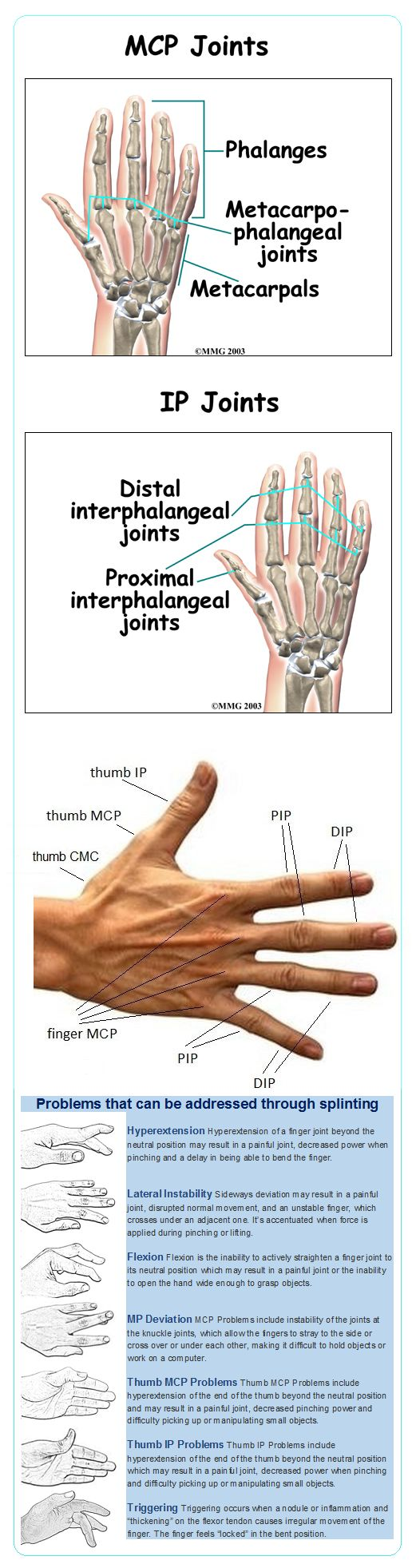 Names of the joints of the hands. Splinting may help reduce pain and injury in EDS / Ehlers-Danlos Syndrome. OREDS does not endorse any particular product.