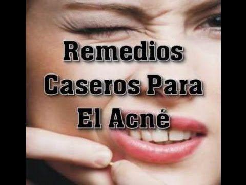 Remedios Caseros Para El Acne - Como Quitar El Acne Rapidamente - http://solucionparaelacne.org/blog/remedios-caseros-para-el-acne-como-quitar-el-acne-rapidamente/
