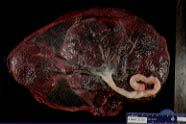 Examination of the Placenta - American Family Physician