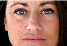 Skin Retouching - tutorials for Photoshop CS5
