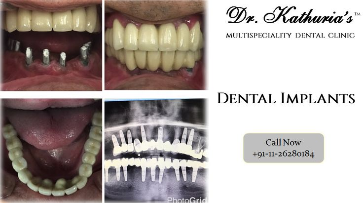 Dental Implants done at Dr. Kathuria's Multispeciality Dental Clinic #Dentalimplants