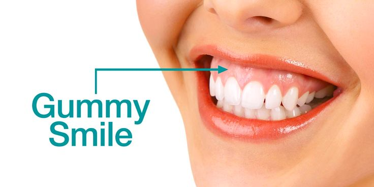 Park Art|My WordPress Blog_How To Fix A Gummy Smile With Surgery