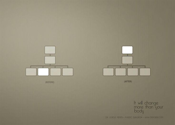 Alfa   Ads of the World™