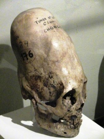 Ancient Mysteries – Cone Head Skulls | Stuart Wilde | The Official Author Website