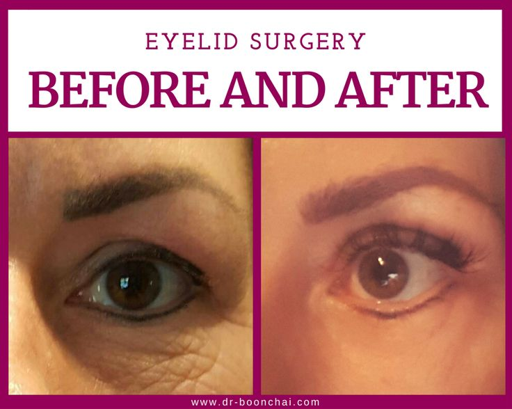 The 25 Best Eyelid Surgery Cost Ideas On Pinterest -9235
