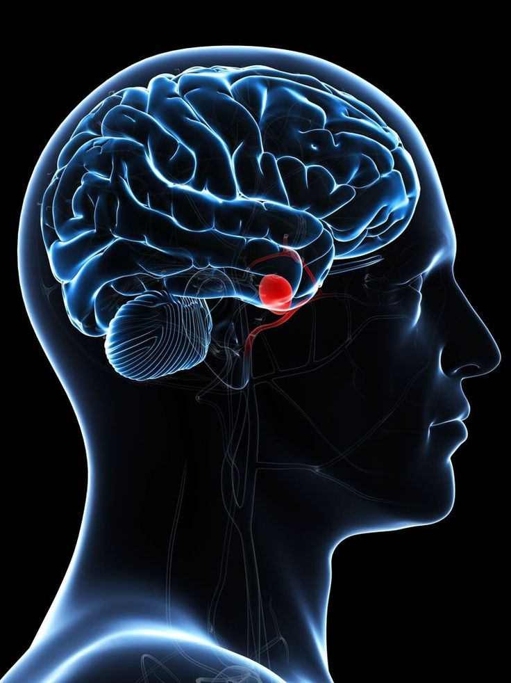 What to expect from a brain aneurysm. Learn more about what an aneurysm is and the prognosis of a brain aneurysm.