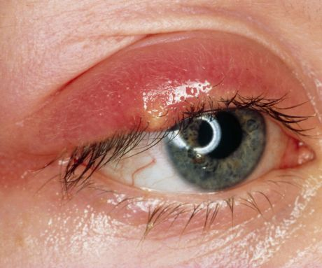 A critical look at the stye on eyelids, causes, pictures, cysts, pimples, treatment and home remedies. How long does astye on eyelidslast A stye is an equivalent of a pimple on the upper or even the lower eyelid. Stye on eyelids are brought about by blockage of the oil producing gland, which is infected by …