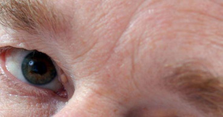 """Quais são os tratamentos para olheiras devido ao enxerto de gordura?. Seus olhos normalmente são a primeira coisa que as pessoas notam, e você pode sentir que olheiras o fazem parecer mais velho. De acordo com a Mayo Clinic, """"as razões comuns para as olheiras podem ser hereditárias ou pelo afinamento da pele abaixo dos olhos, devido à idade, exposição ao sol ou alergias"""". O enxerto de gordura é um tratamento que ..."""