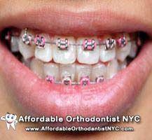 Manhattan invisible braces cost