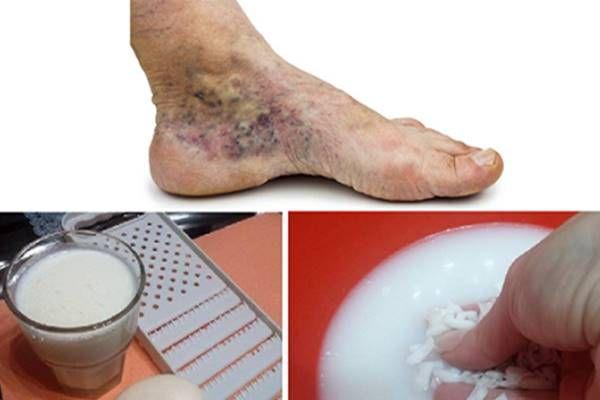 Az érszűkület legelső tünetei: ha időben orvoshoz fordulsz, megelőzheted a bajt - Egészség   Variconis