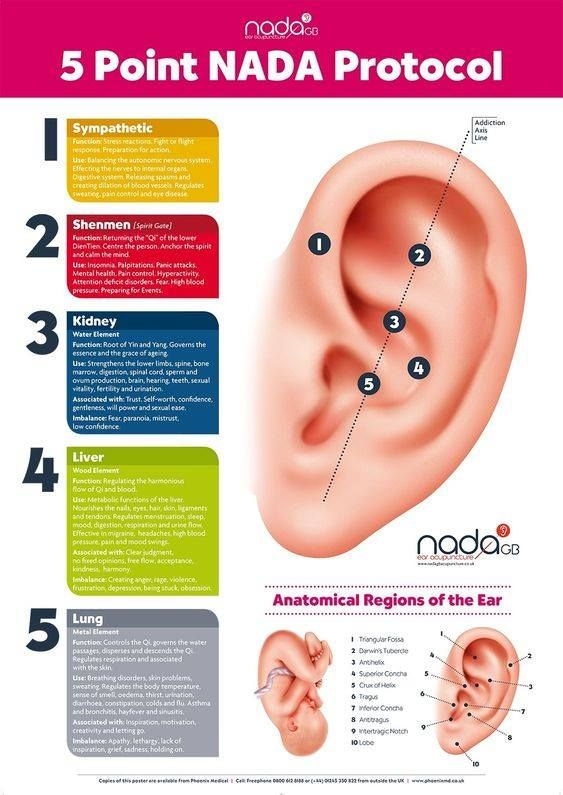NADA protocol for #PTSD and #addictions Needles or ear seeds on