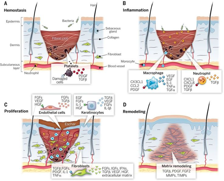 stages of wound healing photos - Google Search