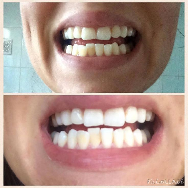 Side Effects of Using Teeth Whitening Toothpaste